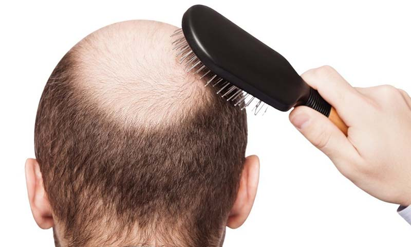 Natural Ways for Healthy Hair | www.pakistantribe.com healthy hair
